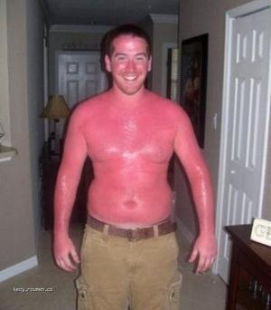 Thats Some Serious Sunburn