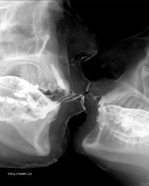 x ray kiss