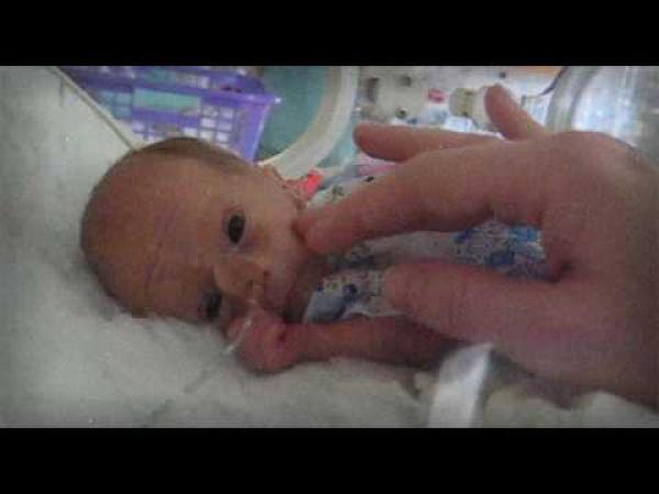 Laurinka - narozená v 6-tém měsíci