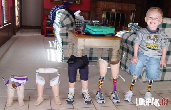OBRÁZKY a RESPEKT - Chlapeček bez nohou