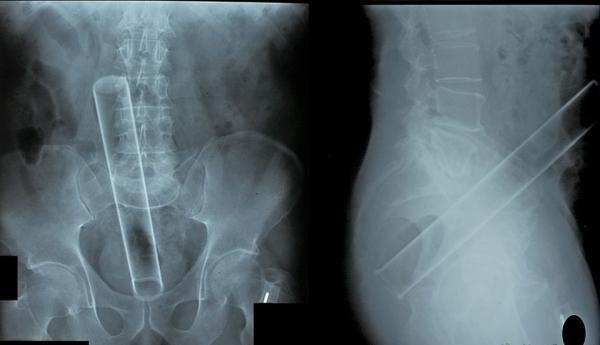 OBRÁZKY - Zajímavé rentgeny