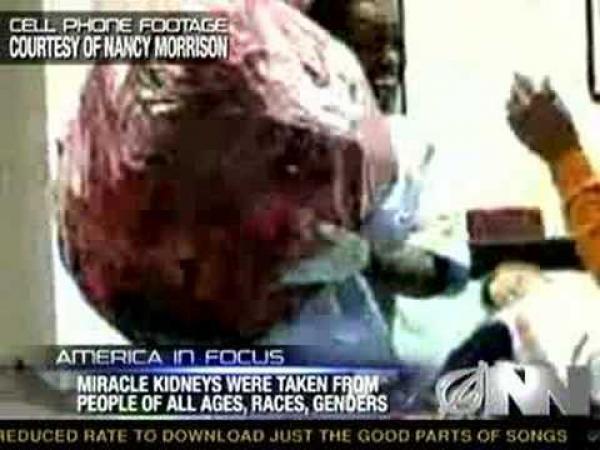 Anonym daroval 200 lidských ledvin