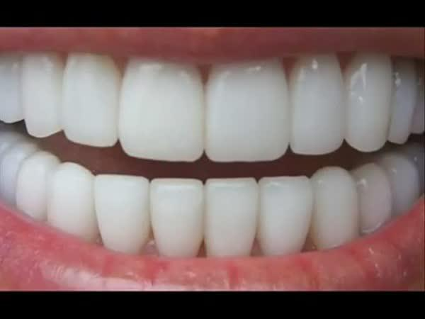 Návod - Jak na bílé zuby