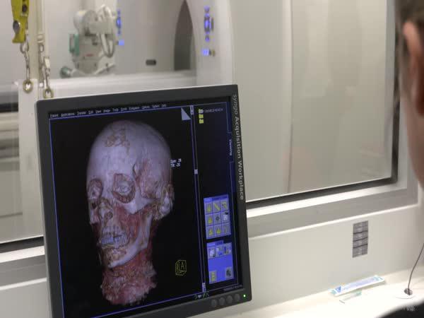 Rekonstrukce tváře mumie