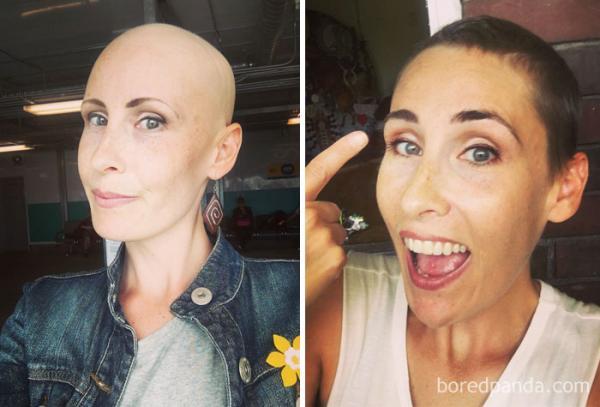 GALERIE - Lidé, kteří porazili rakovinu