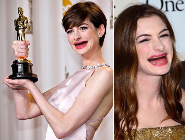 GALERIE – Celebrity bez zubů