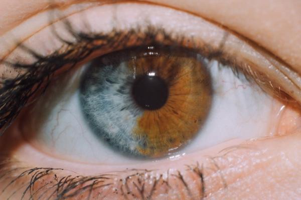 GALERIE – Co vše dokáže genetika